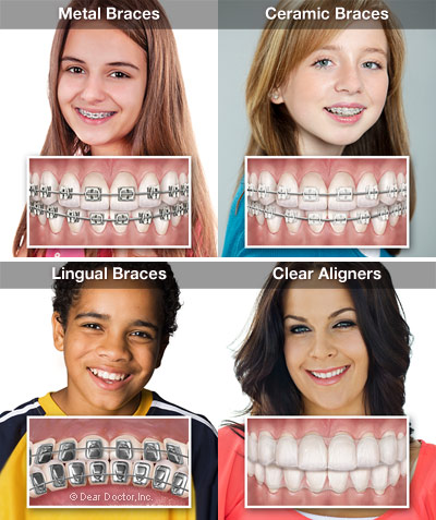 4 types of dental braces